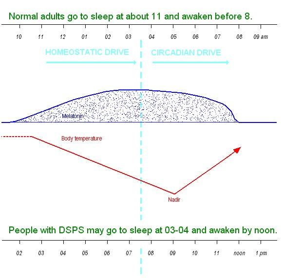 Retinohypothalamic Tract Dsps A Sleep Disorder